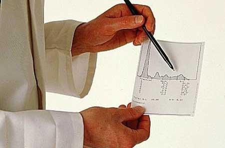 показатели холестерина в крови мужчин после 50