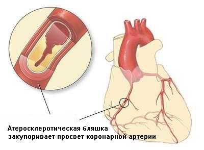 http://saharniy-diabet.com/userfiles/ishemiya1.jpg