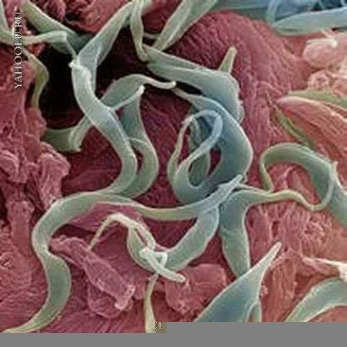 чай паразитов в организме человека