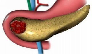 панкреатит и сахарный диабет