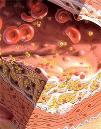 количество холестерина в крови