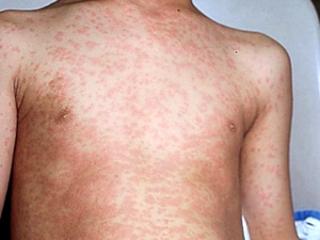 аллергия на груди и животе