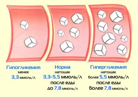 http://saharniy-diabet.com/userfiles/yroven%20sahara.jpg